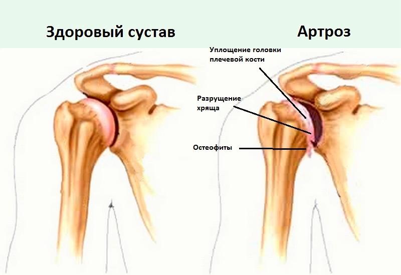 Деформирующий артроз плечевого сустава реабилитация кости образующие сустав